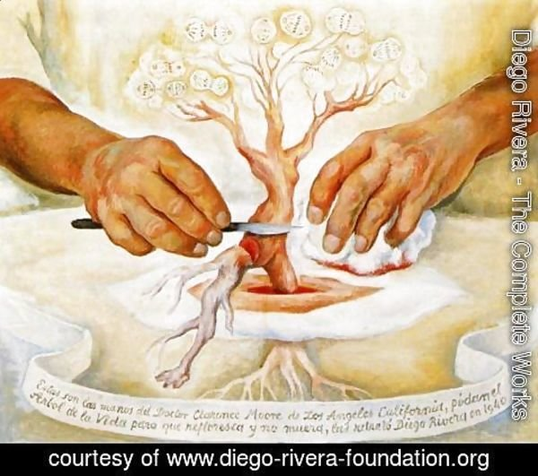Diego Rivera - The Hands of Dr Moore (Los manos del Dr Moore) 1940